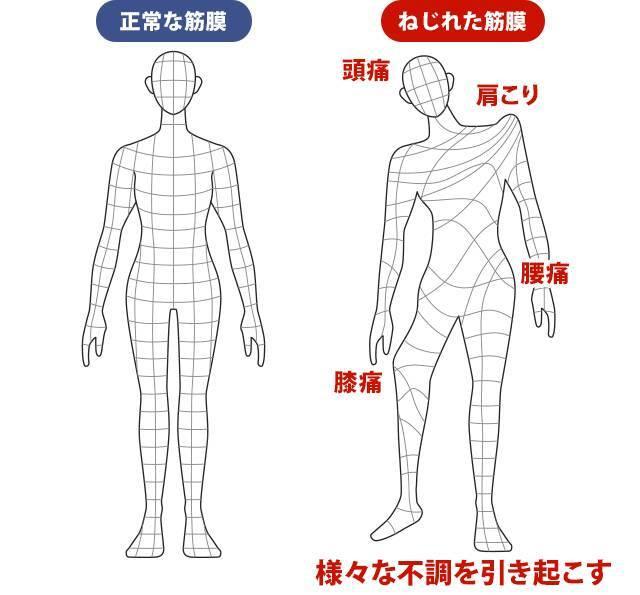 筋膜のねじれ