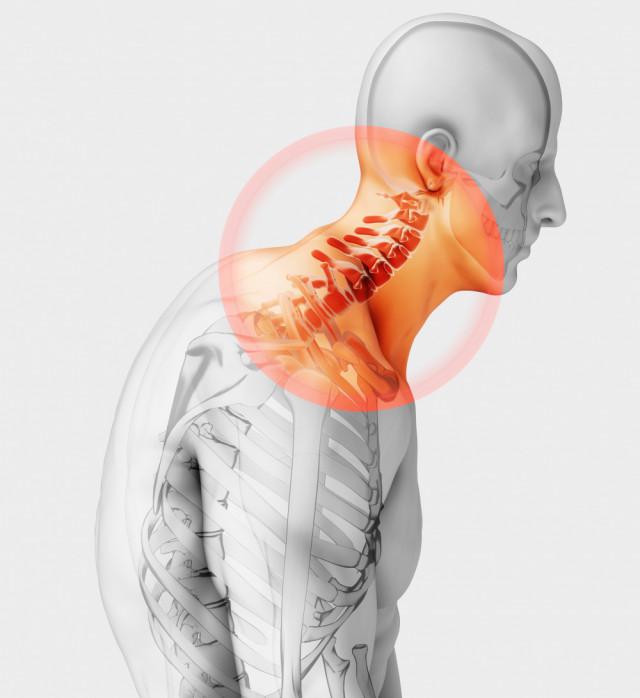首痛の仕組み